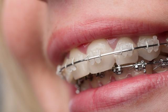Ortodonta dziecięcy Gdynia