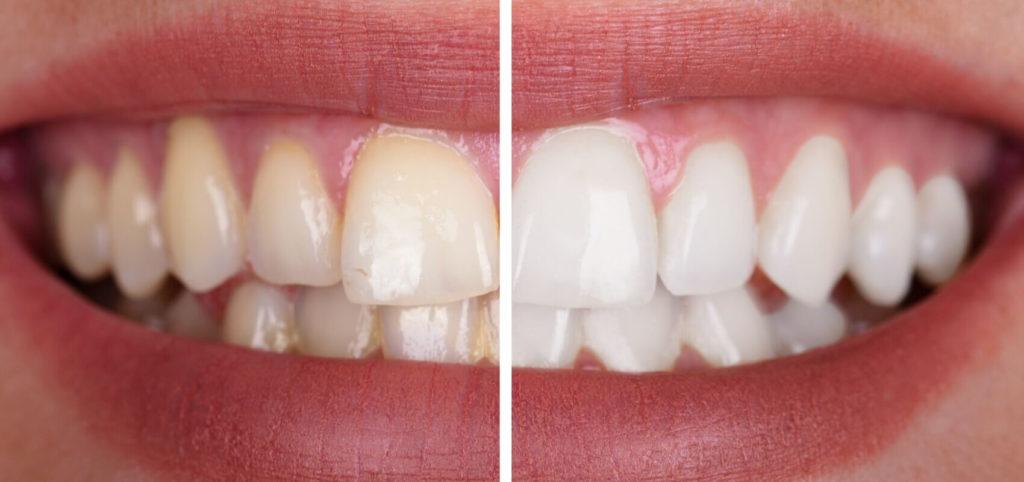 Wybielanie zębów wGdyni